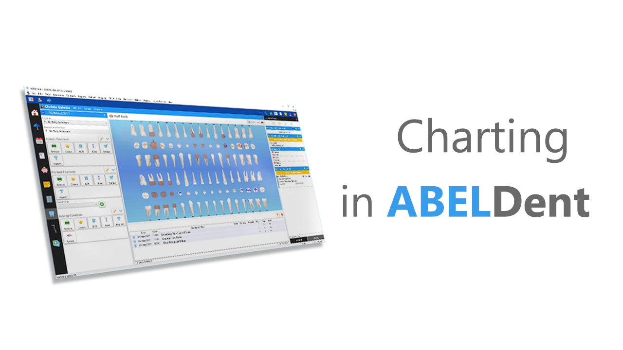 Simplified Charting in ABELDent CS and LS+